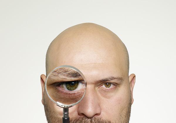 男性抗脫髮藥(禿頭藥)可致勃起功能障礙 1