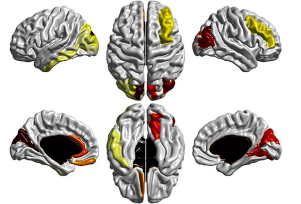 大腦掃瞄有助於提前診斷自閉症 4