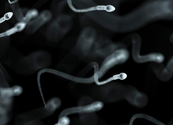 精子畸形率高未必生育畸兒 了解可能導致畸型兒原因 1