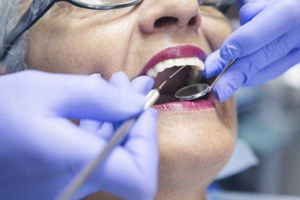 老年女性患牙齦疾病,過早死亡風險增12% 2