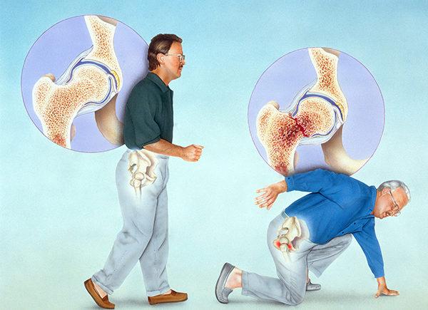 老年人骨質疏鬆性骨折如何預防 1