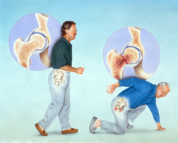 老年人骨質疏鬆性骨折如何預防 3
