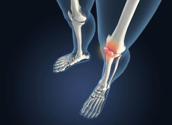 膝關節炎防治要「動起來」,運動不對反傷膝蓋 1