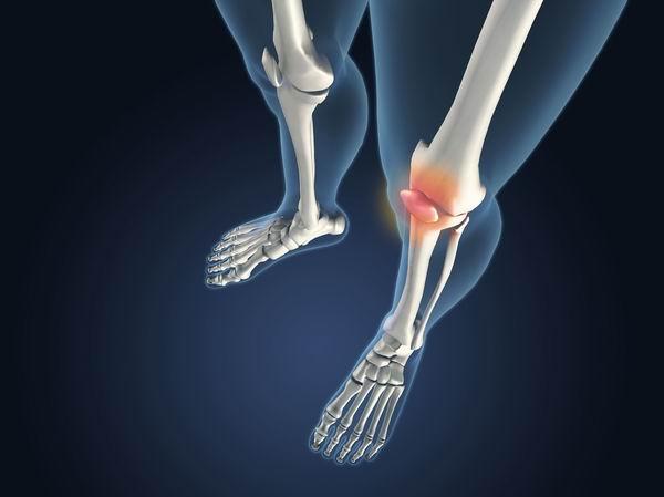 膝關節炎防治要「動起來」,運動不對反傷膝蓋 3