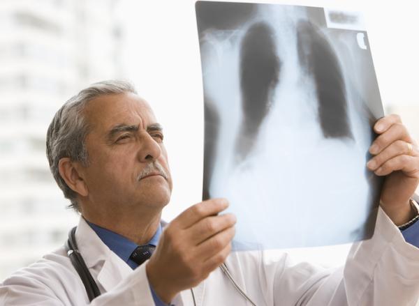 長期咳嗽不止,醫生為何要你做肺功能檢查 2