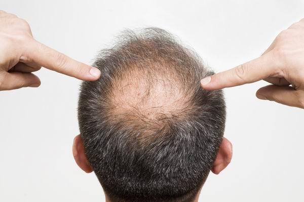 禿頭別怪你爸,長期熬夜也是禍首-了解為何會禿頭 1