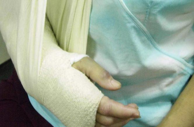跌倒受傷 如何知道是否骨折? 1
