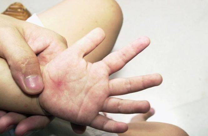 手足口病症狀消失後 仍能傳染他人 1