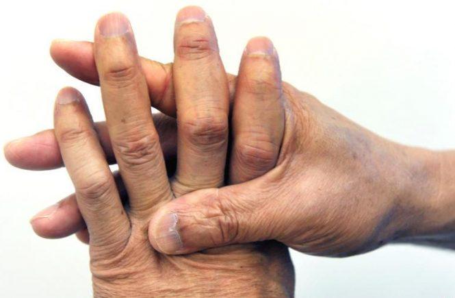 什麼是類風濕性關節炎 病因與療法 1
